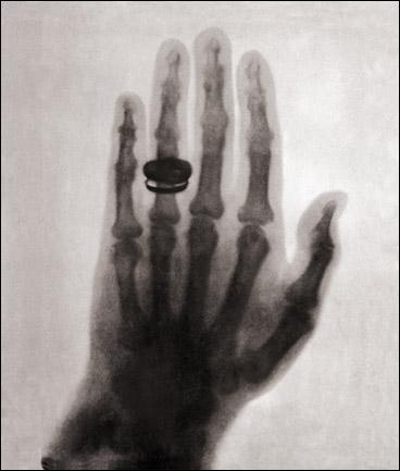 first human x-ray 1896