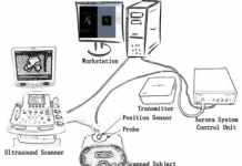 FREEHAND THREE DIMENSIONAL ULTRASOUND (US) IMAGING SYSTEM IN THE ASSESSMENT OF SCOLIOSIS